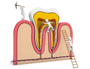 Root Canal Myths
