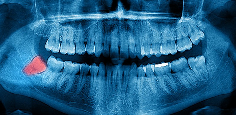 Wisdom Teeth Removal in Lancaster, CA   Wisdom Tooth Extraction